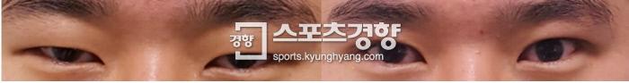 미세현미경 쌍꺼풀수술(눈매교정술포함)전·수술 1주일후. 사진 대영성형외과 제공